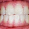 Quatro problemas dentais mais comuns depois dos 50 anos