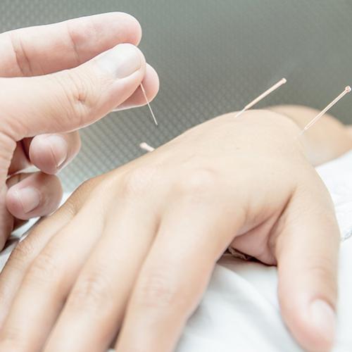 Acupuntura ajuda na reabilitação de pacientes
